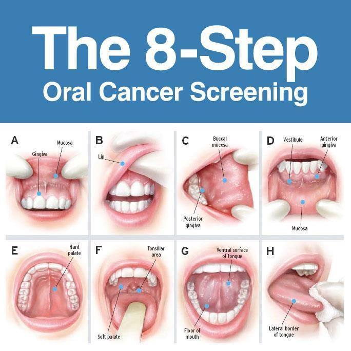 Oral Cancer Screening Graphic