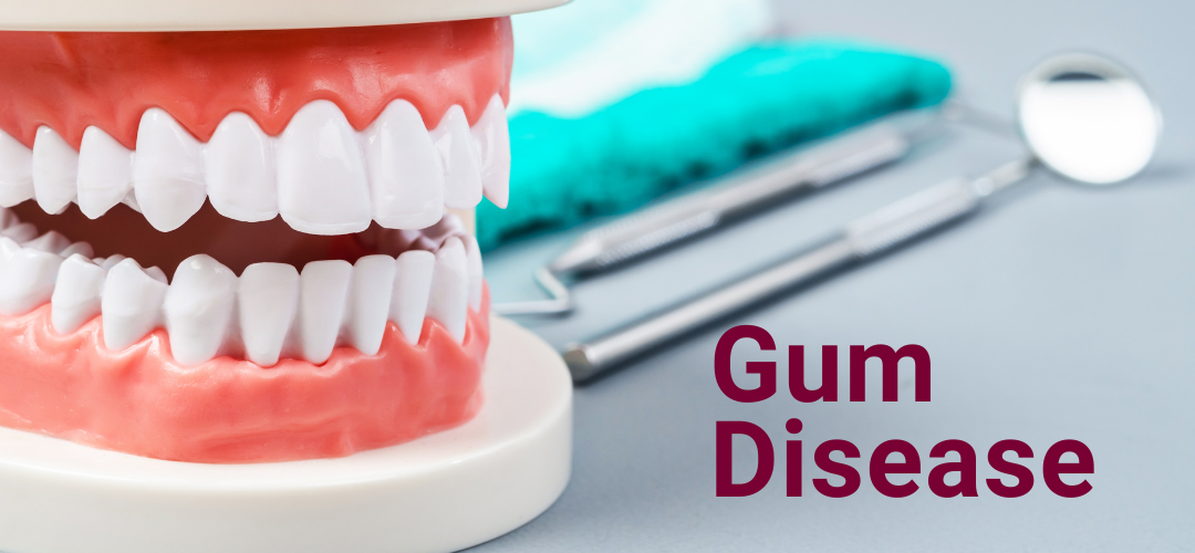 Keeping Your Gums Healthy